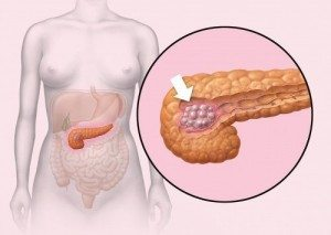 Cancer-de-pancreas-500x355 (1)